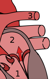 Mitral Valve Regurgitation